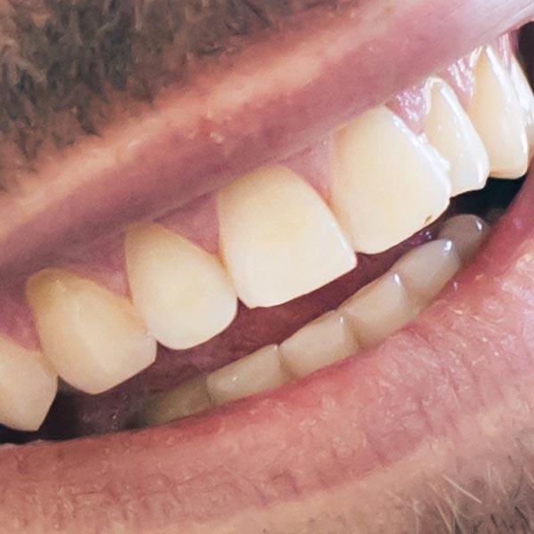 Zähne Großaufnahme